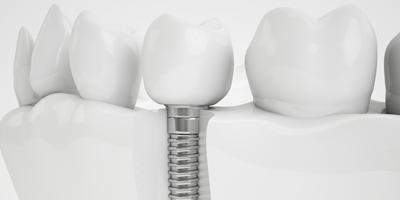 Implantologie Zahnarzt in Solingen