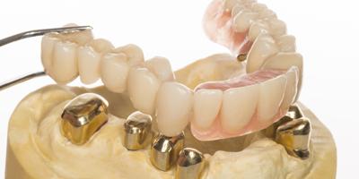 Zahnersatz in Solingen bei Dr. Daoud